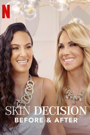 Skin Decision: Before and After izle